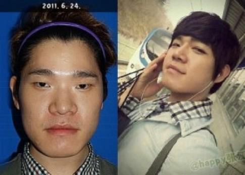 Trào lưu nam giới phẫu thuật thẩm mỹ tại Hàn Quốc