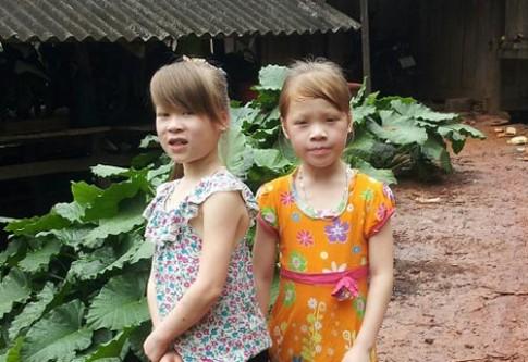 """Kỳ lạ cặp chị em """"giống Tây"""" ở Cao Bằng"""