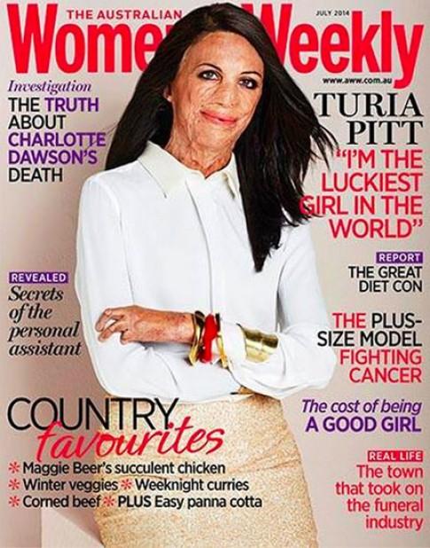 Nạn nhân bỏng thành người mẫu trang bìa tạp chí