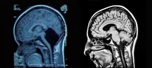 """10 bệnh lạ khiến các bác sĩ """"bó tay"""" năm 2014"""