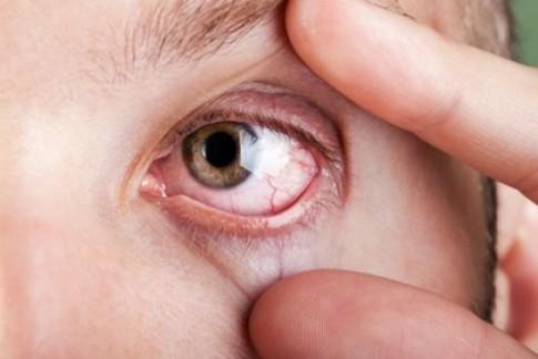 8 tình trạng của mắt cảnh báo bạn đang mắc bệnh hiểm nghèo