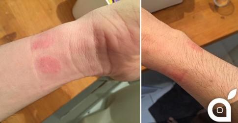 Apple Watch gây kích ứng da cho một số người dùng