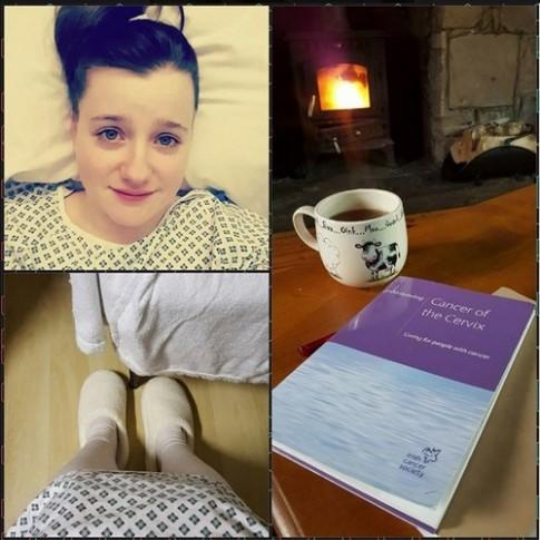 Cô gái 24 tuổi mách bạn dấu hiệu đầu tiên của bệnh ung thư cổ tử cung