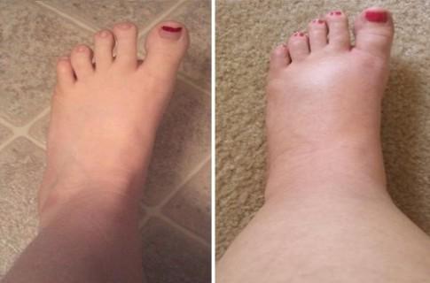 Dễ dàng trị đôi chân phù múp chỉ bằng 4 bước cực đơn giản