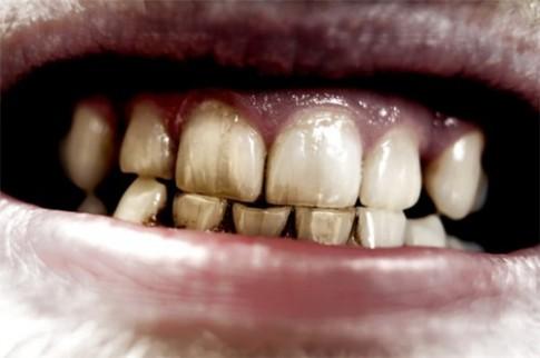 """Hiểu 1001 sự thật về răng miệng sẽ giúp bạn tỏa sáng như """"nữ thần"""""""