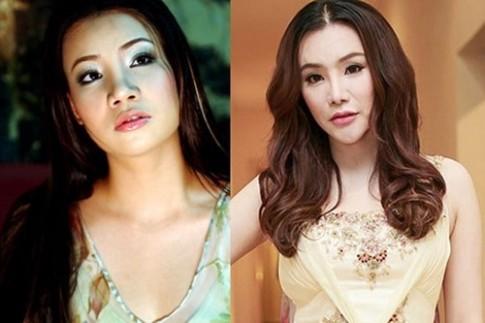 Nhung bien chung thuong gap voi cac phuong phap PTTM dang hot