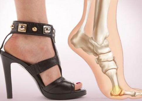 Rất nhiều nguy hại nếu thường xuyên đi giày cao gót