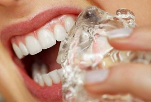 Vì sao răng bạn dễ bị gãy?
