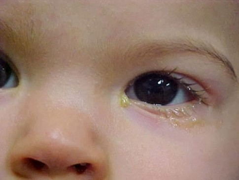 3 dấu hiệu nguy hiểm với mắt của bé