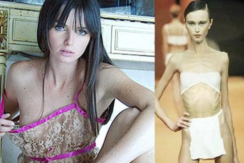 7 người mẫu tử vong vì giảm cân