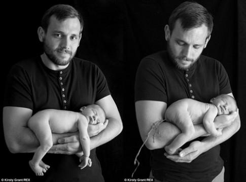 Ảnh bé sơ sinh hồn nhiên đại tiện trên tay cha gây sốt