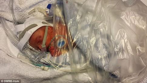 Bộ ảnh 100 ngày chuyển biến kỳ diệu của em bé sinh non 4 tháng