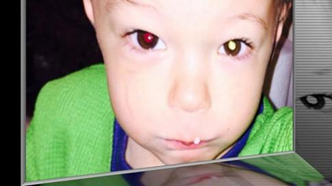 Bố Việt cảnh báo cha mẹ kiểm tra ung thư mắt trẻ bằng iPhone
