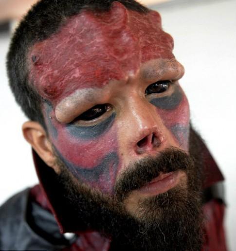 Bủn rủn với mốt cấy ghép dưới da để giống 'thần tượng'