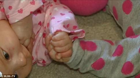 Cặp song sinh nắm tay nhau: sau 6 tháng vẫn 'chưa thể tách rời'