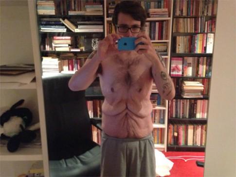 Chàng trai có bộ da thừa nhăn nhúm sau khi giảm 80kg