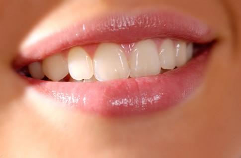 """""""Chữa"""" răng xỉn màu bằng các loại trái cây"""