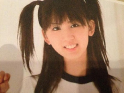 Cô gái Nhật thành 'dị nhân' vì độn cằm