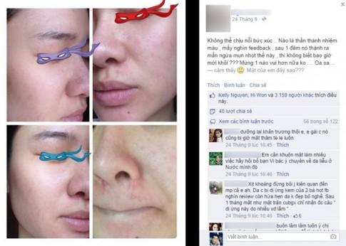 """Cô gái Việt """"nát mặt"""" vì mỹ phẩm trôi nổi trên mạng"""