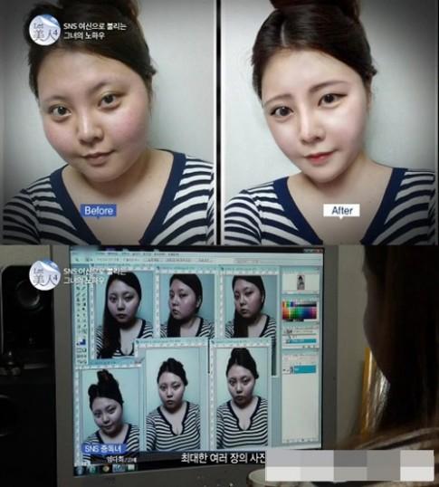 Cô nàng đẹp nhờ camera 360 đã giảm cân nhờ châm cứu