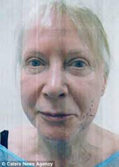 Cụ bà 75 níu tuổi xuân bằng 18 lần phẫu thuật