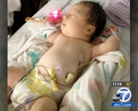 Em bé sinh ra không có máu trong người