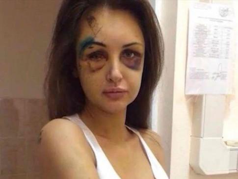 """Eva """"soi"""" 24/3: Siêu mẫu bị đánh bầm dập"""