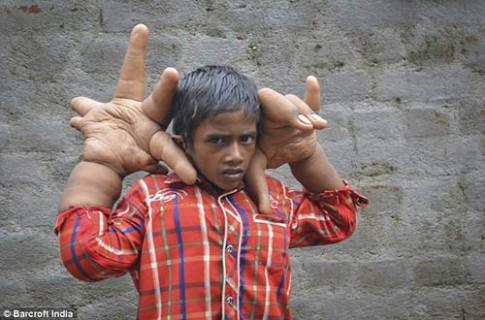Kinh ngạc: Bé 8 tuổi có bàn tay lớn hơn đầu người