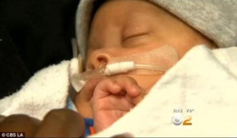 Kinh ngạc hình ảnh em bé sinh ra còn nguyên bọc ối