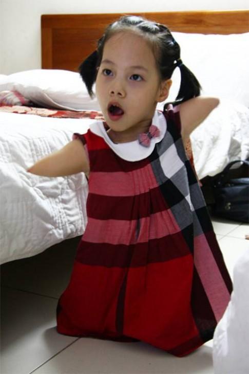 Mẹ bé Linh Chi: Sợ nhất con bị kỳ thị
