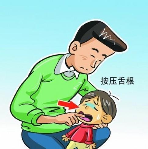 Minh họa cách sơ cứu trẻ bị hóc nghẹn mẹ phải biết