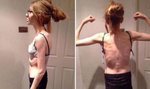 'Nghiện' ăn kiêng, cô gái 15 tuổi chỉ còn da bọc xương
