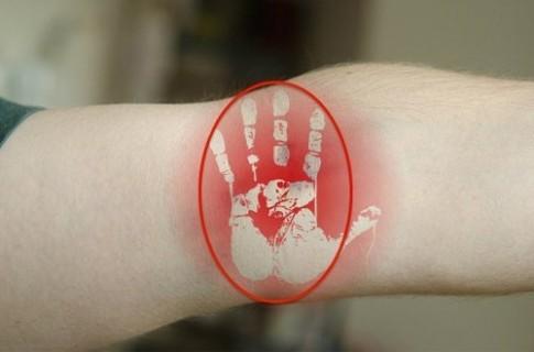 Ngừa bệnh tim mạch và huyết áp nhờ vỗ mạnh khuỷu tay