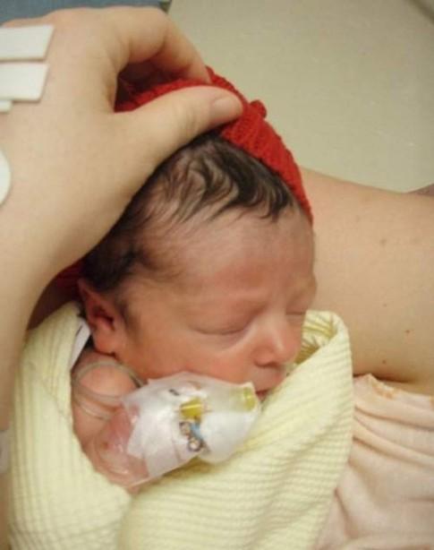 Những bé sơ sinh kỳ lạ khiến y học thế giới kinh ngạc