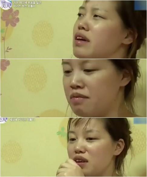 PTTM lung linh cho cô gái hỏng hàm răng