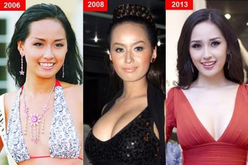 Sao Việt trước và sau 'nghi án' nâng ngực