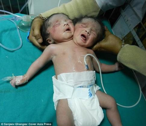 Sinh con 2 đầu vì không có tiền siêu âm