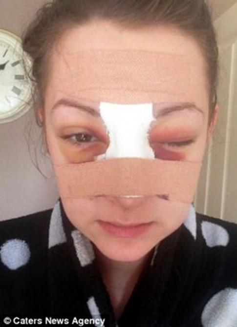 Thành hot girl sau khi bị đánh dập mũi