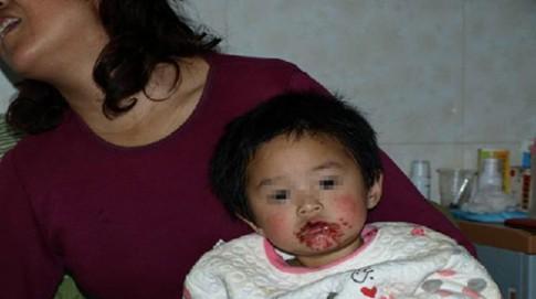TQ: Hai trẻ loét miệng vì ăn quà vặt Trung Quốc
