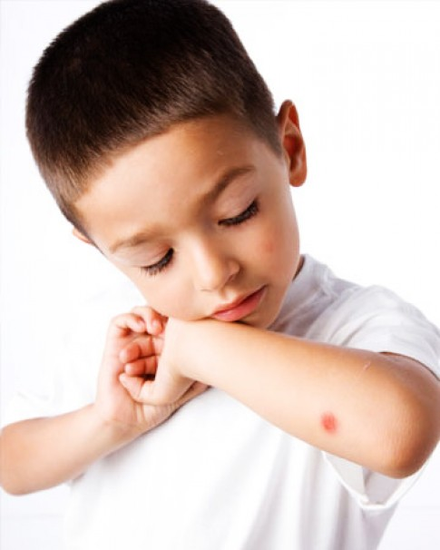Trẻ bị muỗi đốt đã có...sơn móng tay