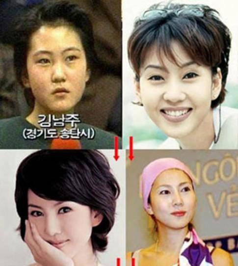 U50 Kim Nam Joo đẹp quên tuổi vì thẩm mỹ