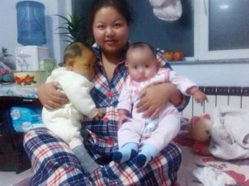 Xúc động: Bố giảm 15kg để hiến gan cứu con