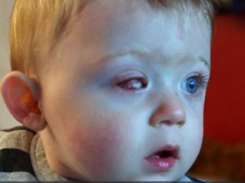 Bé 18 tháng tuổi hỏng 1 mắt vì máy bay đồ chơi