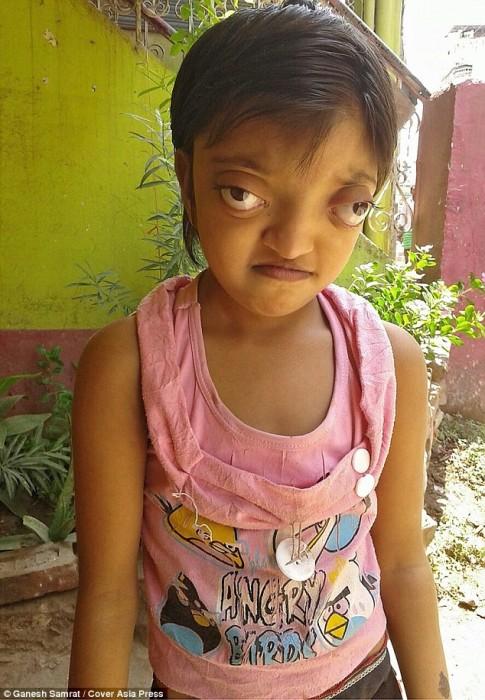 Bé gái với đôi mắt khổng lồ và ước mơ mọi người không còn sợ em nữa