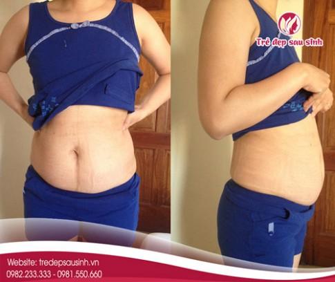 Bí quyết giảm béo bụng lâu năm chẳng cần ăn kiêng.