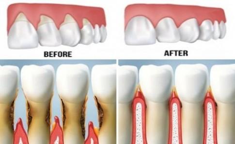 Căn bệnh về răng miệng nguy hiểm mà bạn cần phải biết