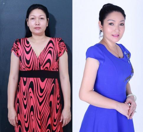 Chị gái Nhật Kim Anh phẫu thuật thẩm mỹ trở lại showbiz.