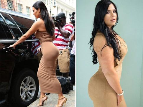 Chi hơn 200 triệu để phẫu thuật mông giống Kim Kardashian