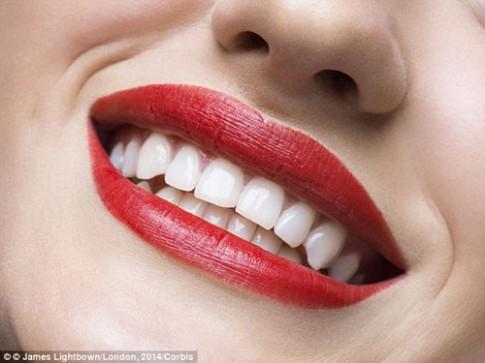 Chuyên gia mách bạn 10 cách làm trắng răng nhanh, rẻ