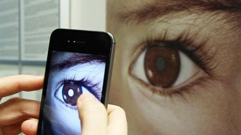 Chuyên gia mách cách nhận biết bệnh của con qua đôi mắt